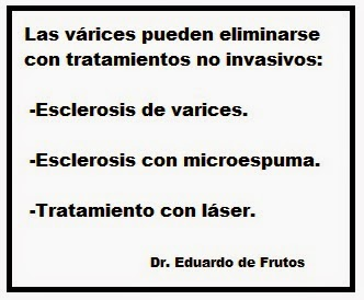 Tratamientos no invasivos para eliminar varices