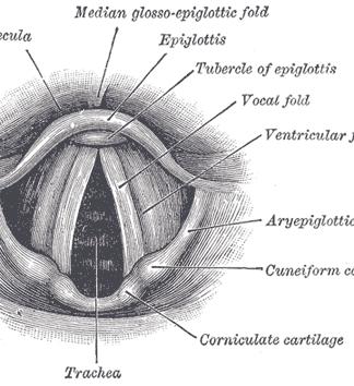 cáncer de laringe