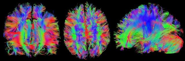 neuropsicología Resonancia magnética del cerebro