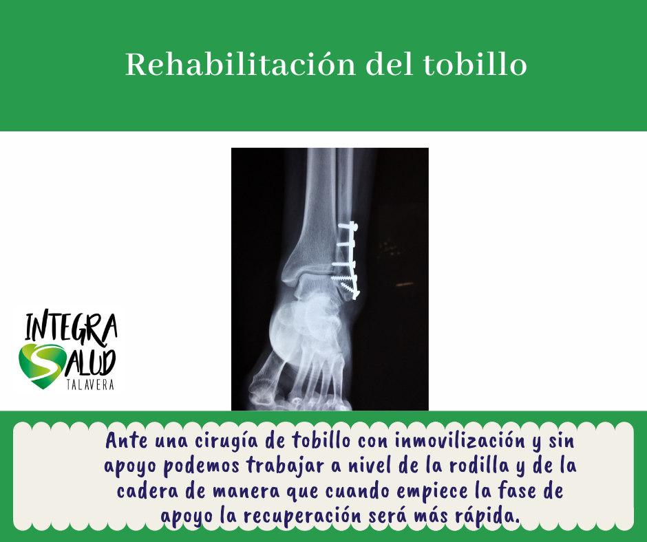 rehabilitación tobillo Fisioterapia Athenea